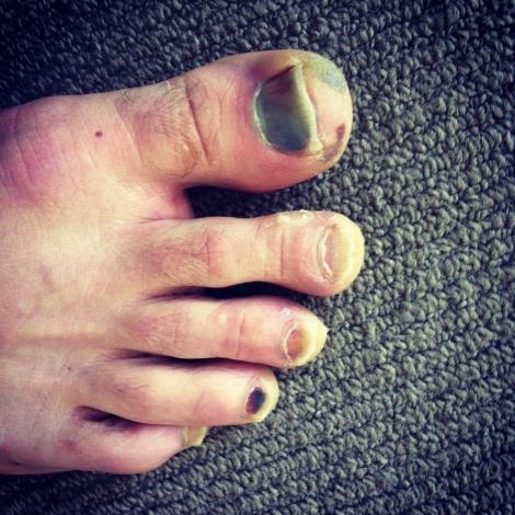 Marathon Toes